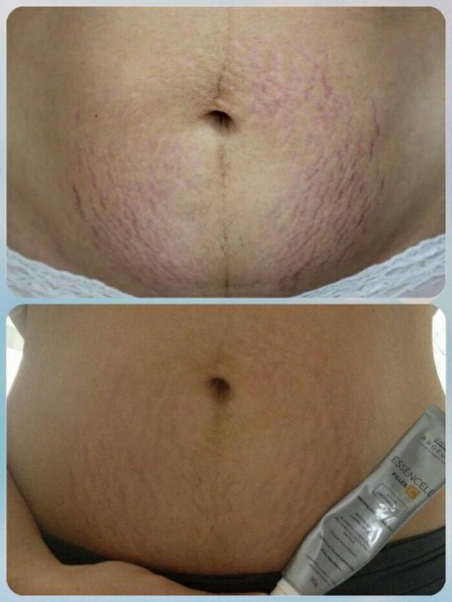 Na primeira foto minha barriga antes do tratamento. Na segunda, as estrias já reduzidas após 2 sessões de laser